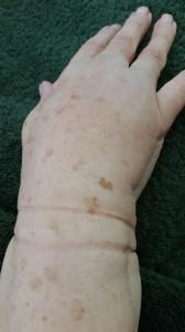Hand Lymphoedema