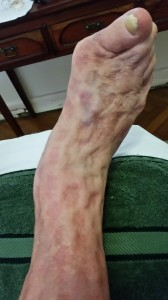 Lymphoedema of the foot. Note indentations after compression removed.