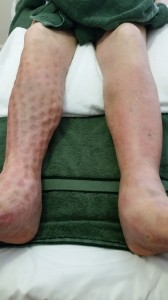 Leg with indentations after mobiderm bandage was removed. Leaving the tissue softer.