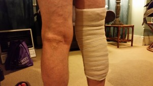 Knee bandaged post traumatic recovery